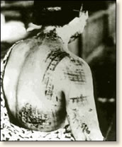 surviving the atomic attack on hiroshima  bombing victim her skin is burned in a pattern corresponding to the light dark portions of her komono